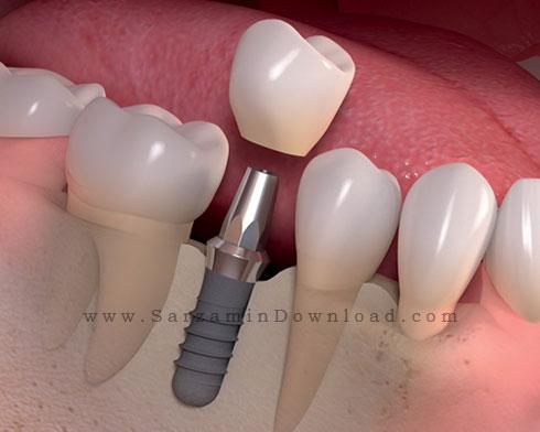 کتاب آموزش اصول اولیه ایمپلت دندان